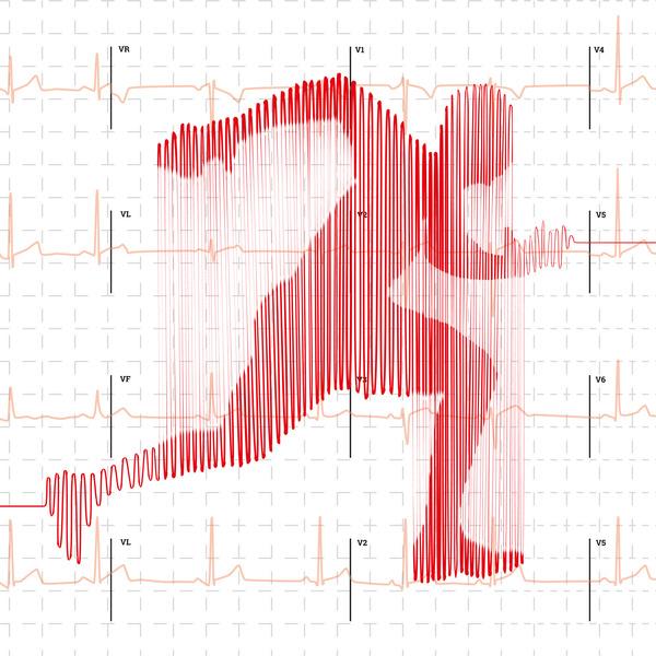 Bioelektronik V - Dem Herzschlag auf der Spur - EKG im Eigenbau